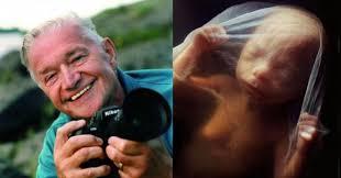 今日头条:瑞典著名摄影大师《生命的奇迹》创造者尼尔松逝世享年94岁